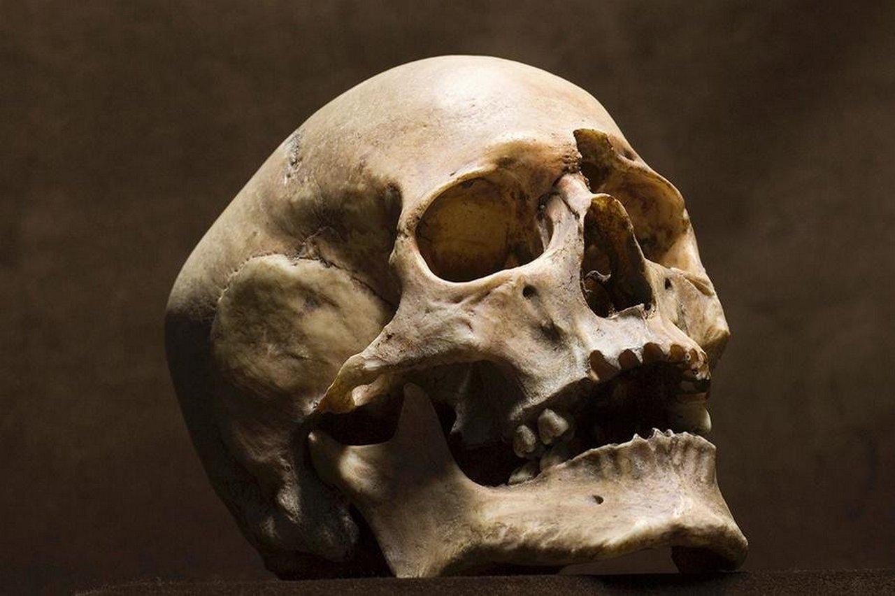 К чему снится череп?